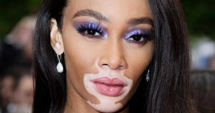 The Truth About Winnie Harlow And Kyle Kuzma