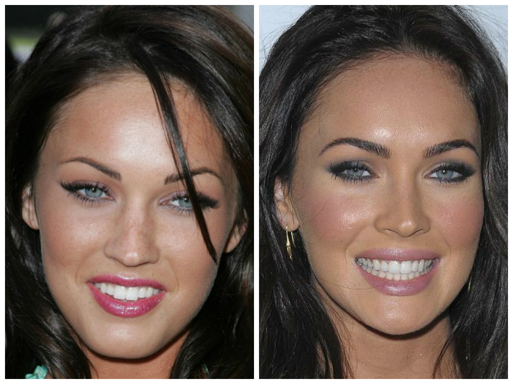 While these celebs have perfect teeth now, that wasnt always the …